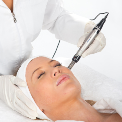 Dermapen Skin Needling Perth